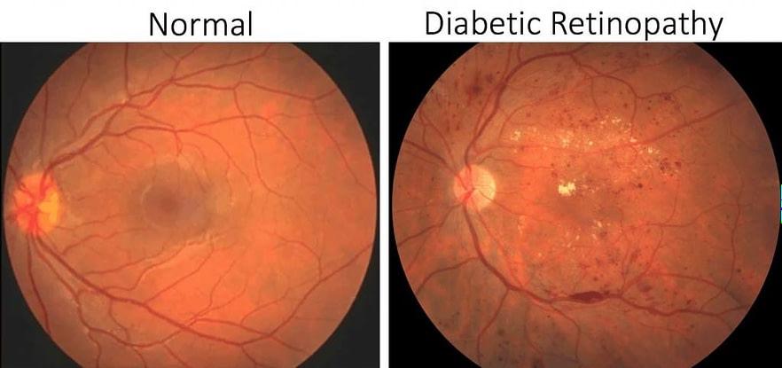 ageing eyes normal eye versis diabetic retinopathy