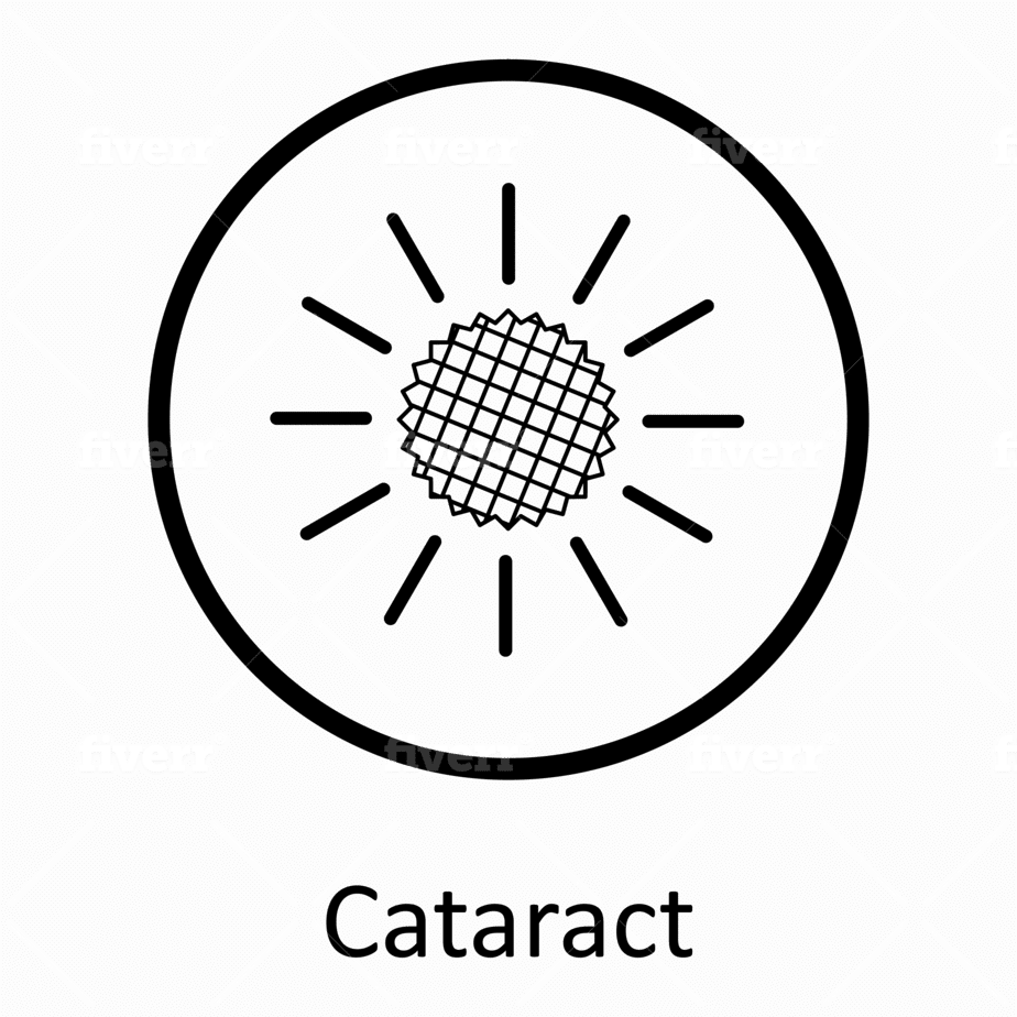 Cataract surgery intraocular lenses dr nick andrew ophthalmologist