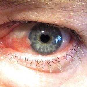 pterygium, eye disease, eye surgery, treatment, dr nick andrew, ophthalmologist