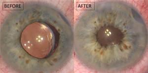 Iris surgery with iris suturing usig pupil cerclage pupilloplasty.