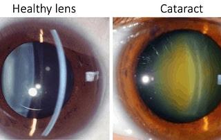 cataract surgery, ophthalmologist, eye diseases, eye problems