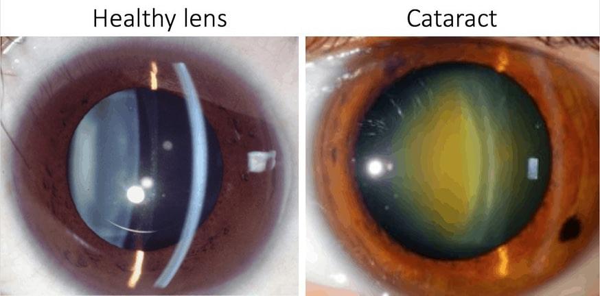 ageing eyes healthy lens cataract
