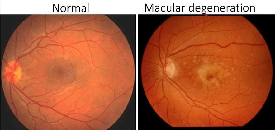 ageing eyes normal eye vs age-related macular degenration