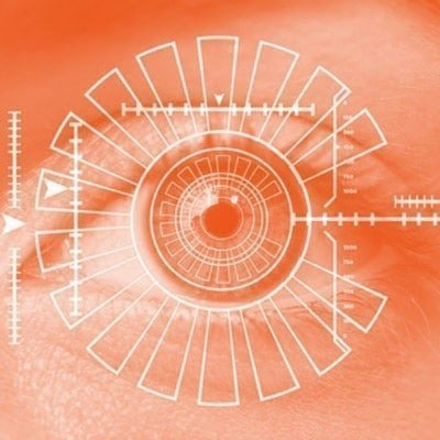 Optical biometry before cataract surgery on the Gold Coast